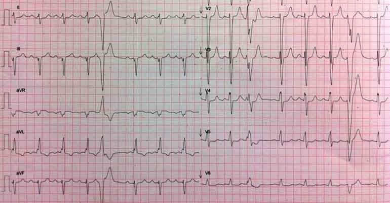 Paciente con miocardiopatía dilatada - Clínica Cardiológica Sevilla